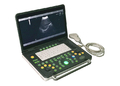 Top Quality15 inch Notebook Diagnostic Ultrasonic Device Convex Probe Scans Abdomen Liver Kidney
